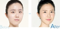 Surgery Of Facial Contour For Deflected Face