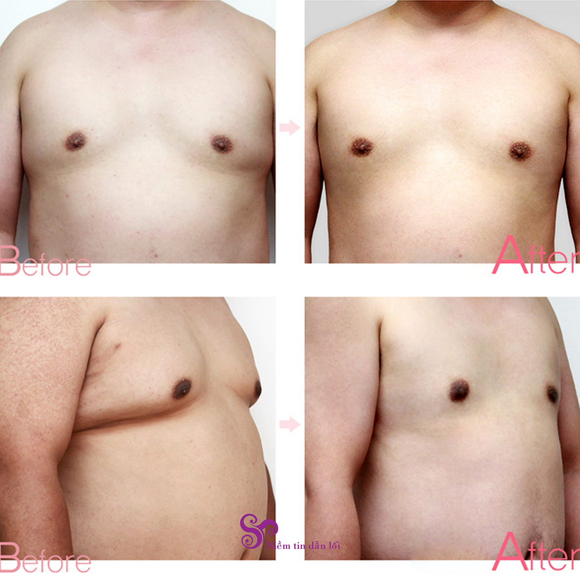 Orthopedic Surgery Of Big Breast For Men